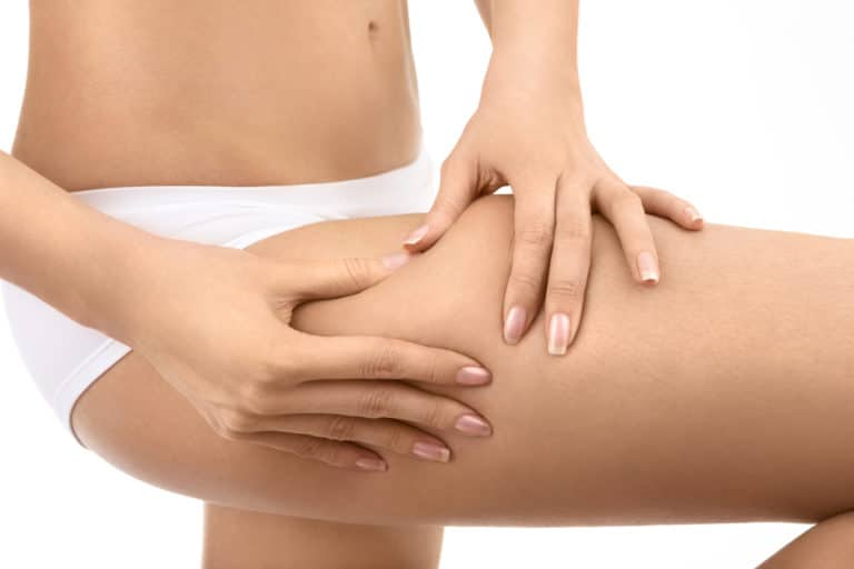 Can Exercise Get Rid of Cellulite?